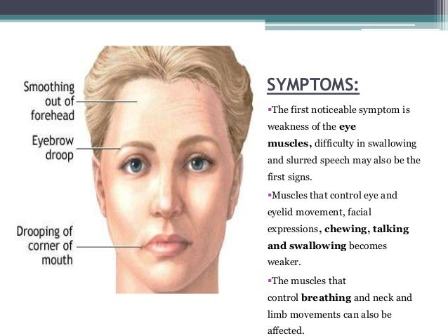 Myasthenia Gravis Definition