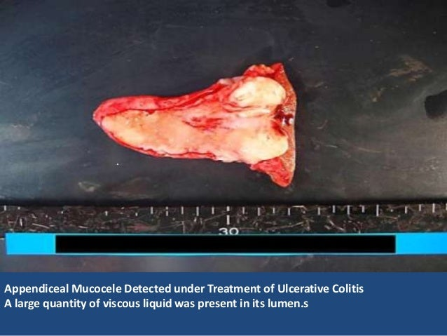 Appendix Gross