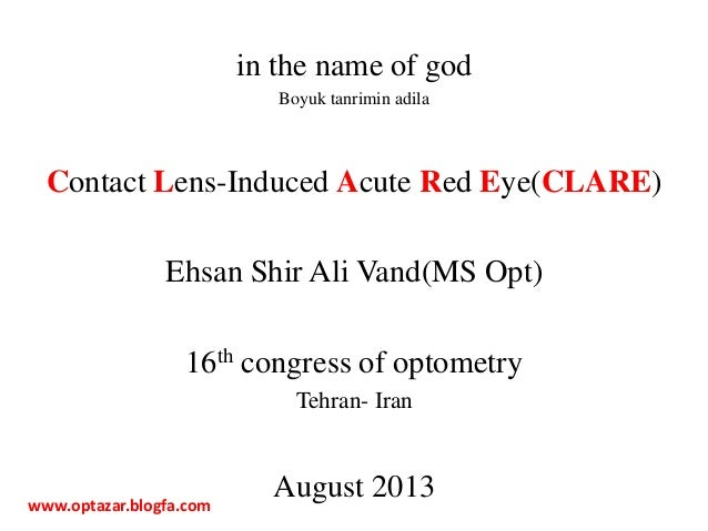 in the name of god Boyuk tanrimin adila Contact Lens-Induced Acute Red Eye(CLARE) Ehsan Shir Ali Vand(MS Opt) 16th congres...