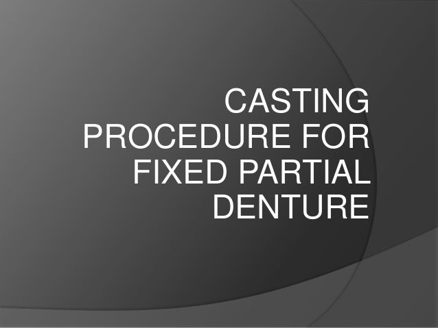 CASTING PROCEDURE FOR FIXED PARTIAL DENTURE