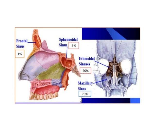 CARCINOMA MAXILLARY SINUS MANAGEMENT RADIATION ONCOLOGY Slide 3