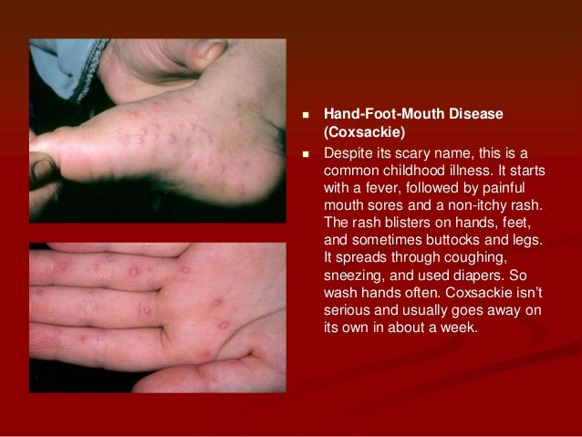 Is a fever blister always herpes dating 1