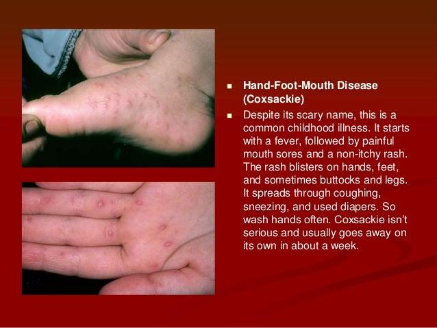 Blister rash foot