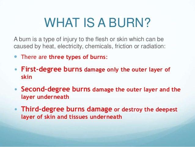 burns ppt. Slide 2