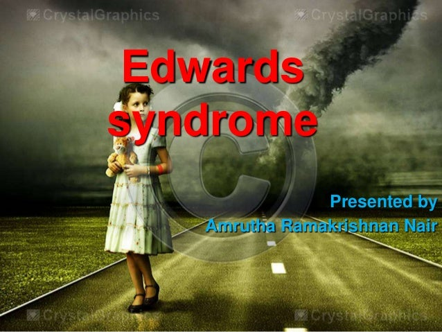 Edwards syndrome Presented by Amrutha Ramakrishnan Nair