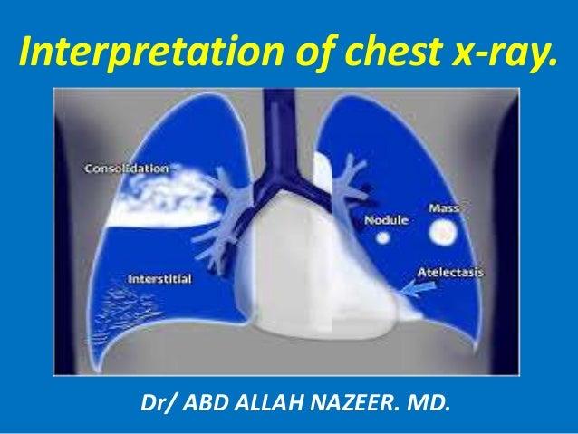 Interpretation of chest x-ray. Dr/ ABD ALLAH NAZEER. MD.