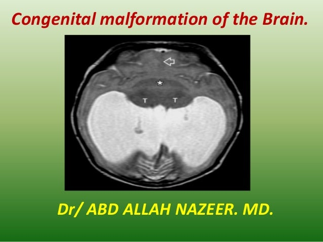 Congenital malformation of the Brain. Dr/ ABD ALLAH NAZEER. MD.