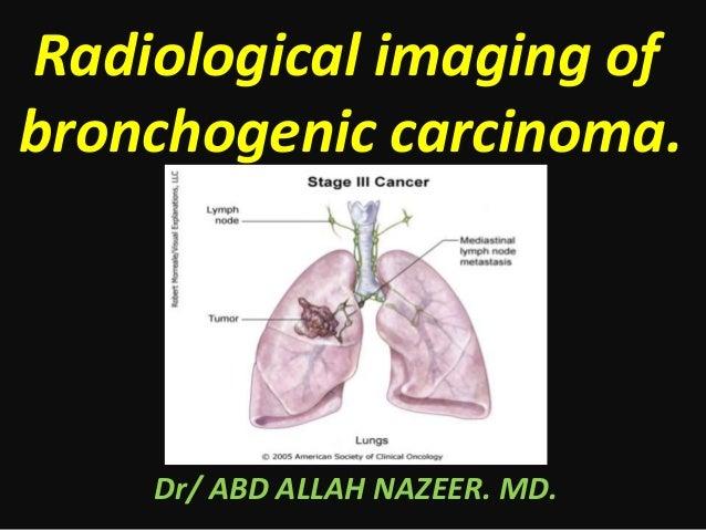 Radiological imaging of bronchogenic carcinoma. Dr/ ABD ALLAH NAZEER. MD.