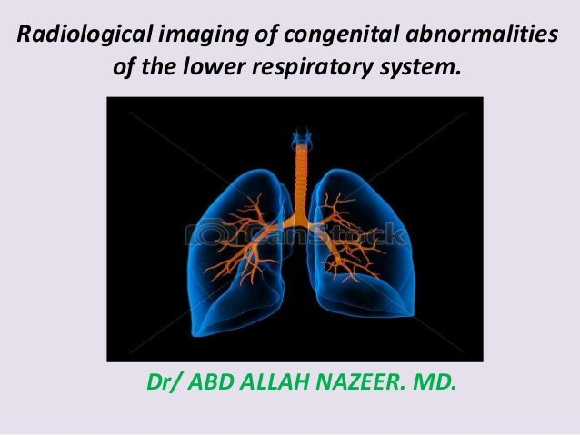 Radiological imaging of congenital abnormalities of the lower respiratory system. Dr/ ABD ALLAH NAZEER. MD.