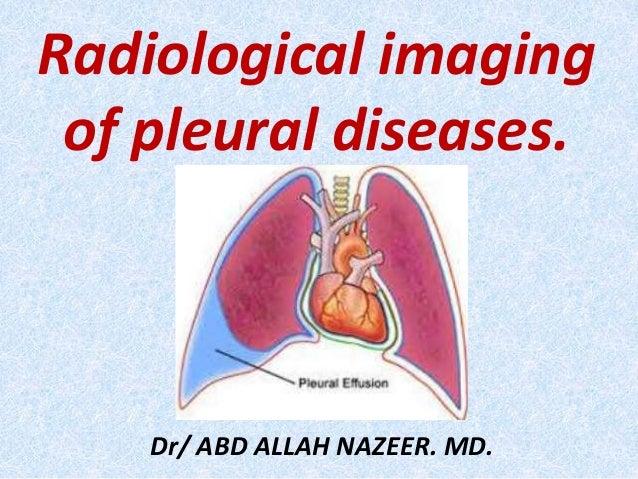 Radiological imaging of pleural diseases. Dr/ ABD ALLAH NAZEER. MD.