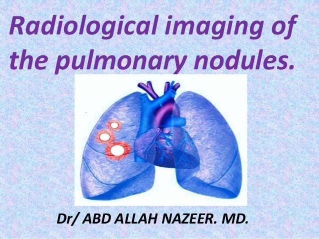 Radiological imaging of the pulmonary nodules. Dr/ ABD ALLAH NAZEER. MD.