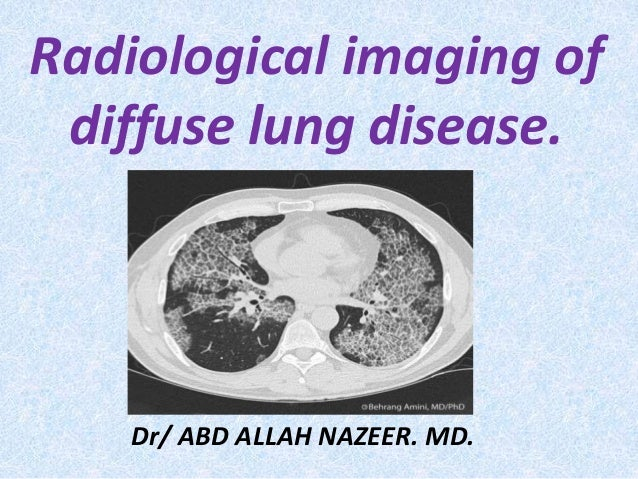 Radiological imaging of diffuse lung disease. Dr/ ABD ALLAH NAZEER. MD.