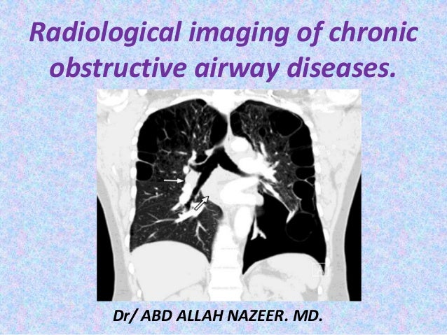 Radiological imaging of chronic obstructive airway diseases. Dr/ ABD ALLAH NAZEER. MD.