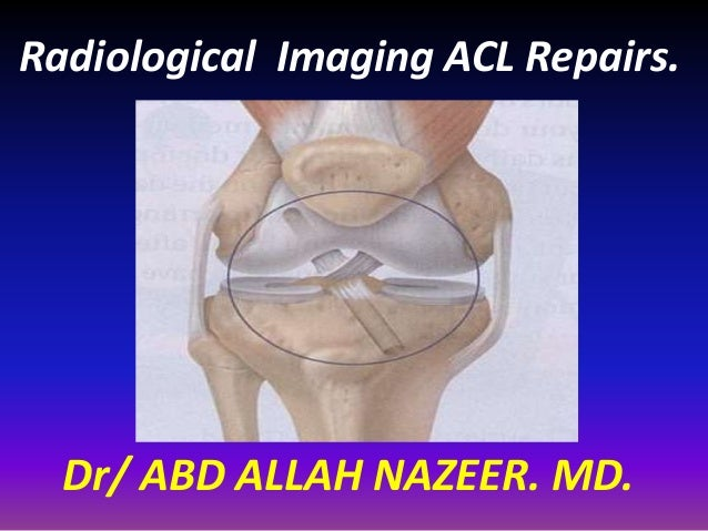 Radiological Imaging ACL Repairs. Dr/ ABD ALLAH NAZEER. MD.