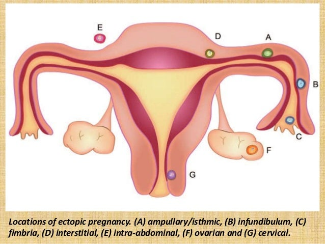 Pregancy after ectopic pregnancy