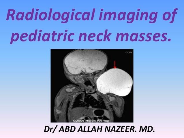 Radiological imaging of pediatric neck masses. Dr/ ABD ALLAH NAZEER. MD.