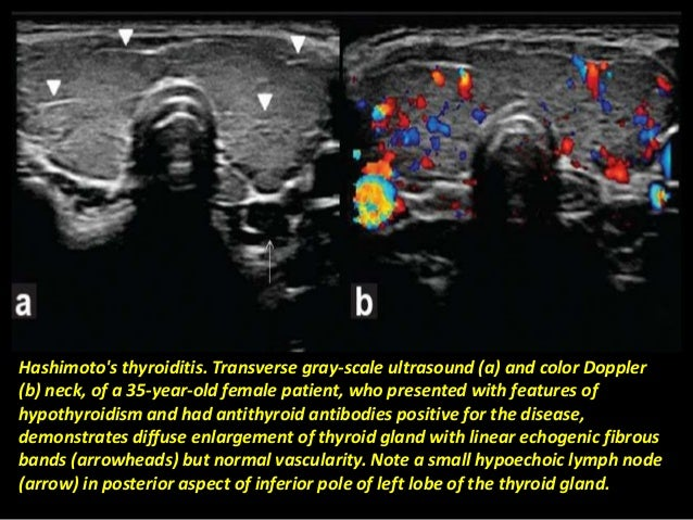 Presentation1 Pptx Radiological Imaging Of The Thyroid Gland Disease