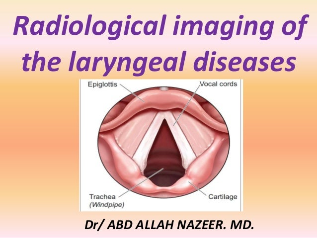 Radiological imaging of the laryngeal diseases Dr/ ABD ALLAH NAZEER. MD.
