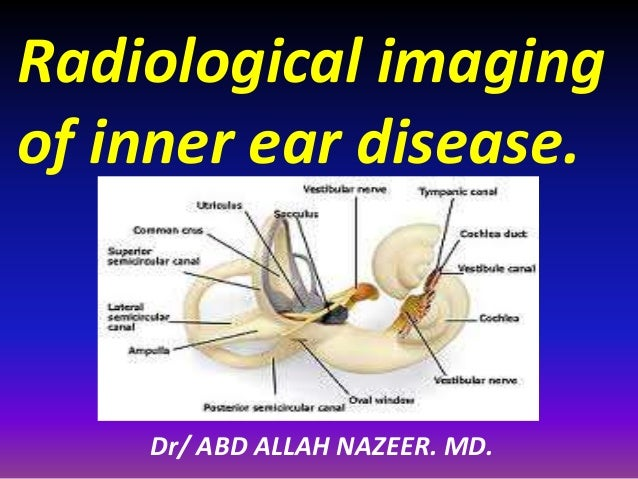 Radiological imaging of inner ear disease. Dr/ ABD ALLAH NAZEER. MD.