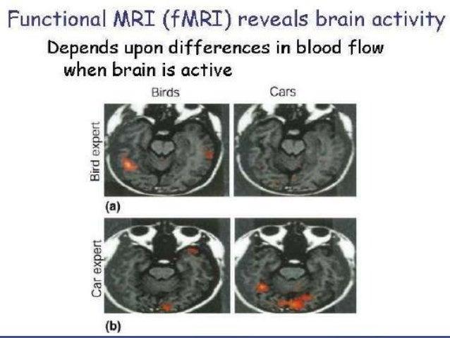 Presentation1.pptx, radiological imaging of dementia.