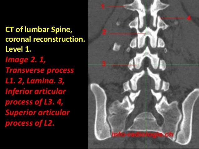Presentation1.pptx, normal spinal anatomy.