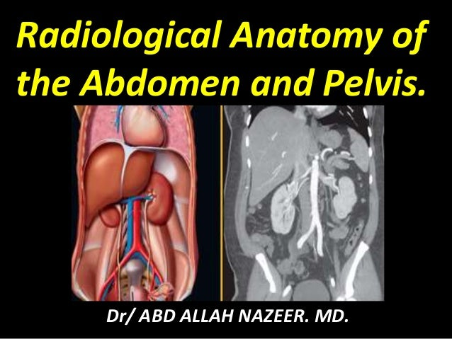 Presentation1pptx Radiological Anatomy Of The Abdomen And Pelvis