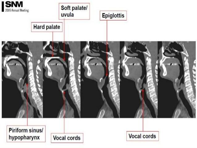 Presentation1 pptx, radiological anatomy of the neck