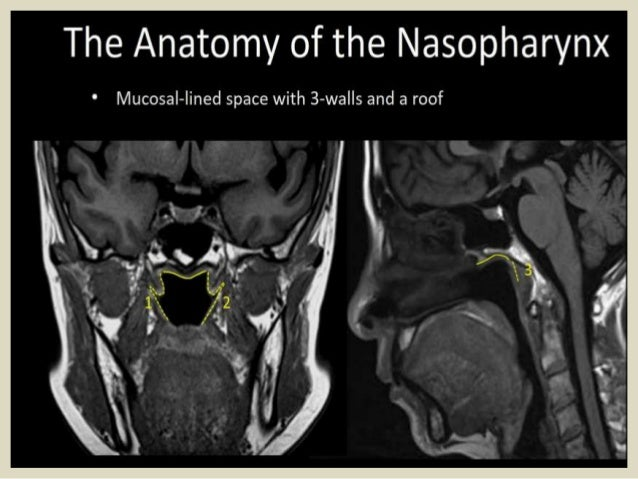 Presentation1pptx Radiological Anatomy Of The Naso Oro And Hypopha