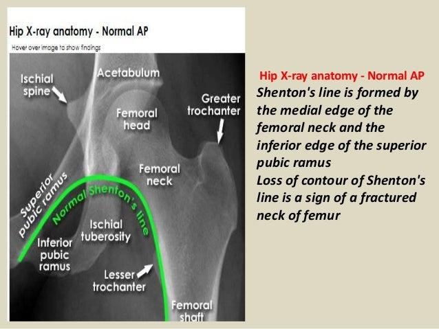 Presentation1pptx Radiological Anatomy Of The Lower Limb Anatomy