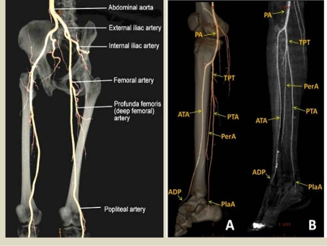 Presentation1pptx Radiological Vascular Anatomy Of The Upper And Lo