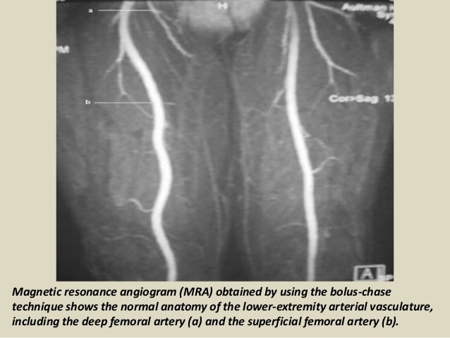Presentation1pptx radiological vascular anatomy of the upper and lo 47 sciox Image collections