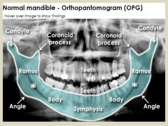 Presentation1.pptx, radiological anatomy of the temporo mandibular jo…