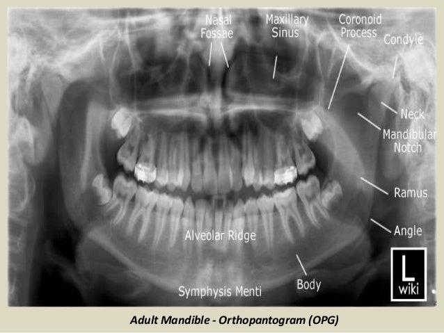 Presentation1 Pptx Radiological Anatomy Of The Temporo