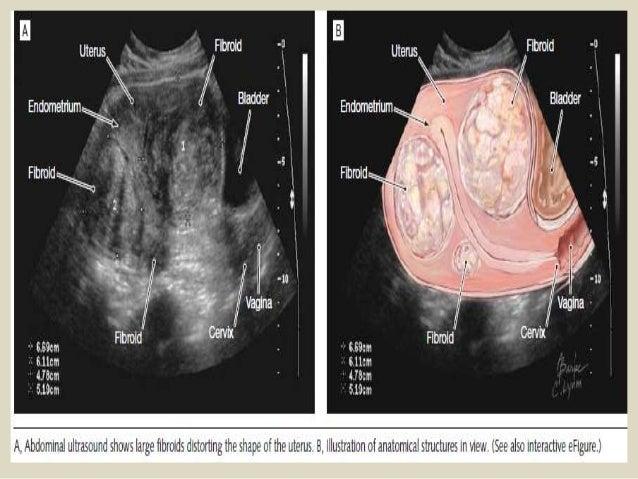 Presentation1 pptx, ultrasound examination of the uterus and