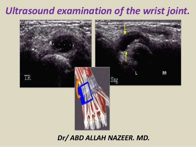 Ultrasound examination of the wrist joint. Dr/ ABD ALLAH NAZEER. MD.