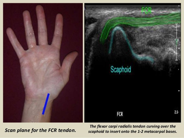 Ultrasound Examination Of The Wrist Joint