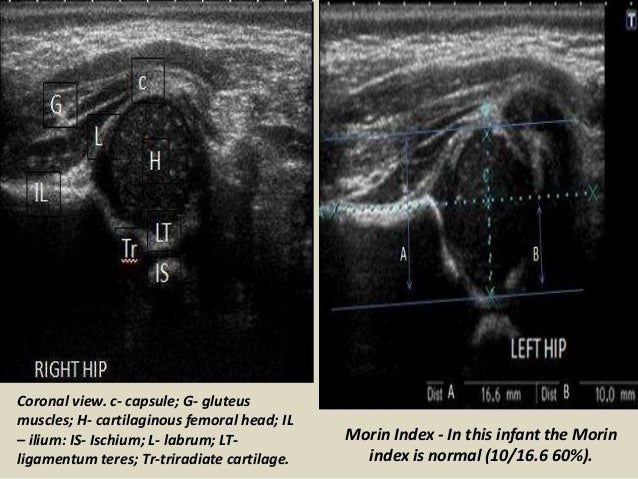 Presentation1.pptx, ultrasound examination of the hip joint