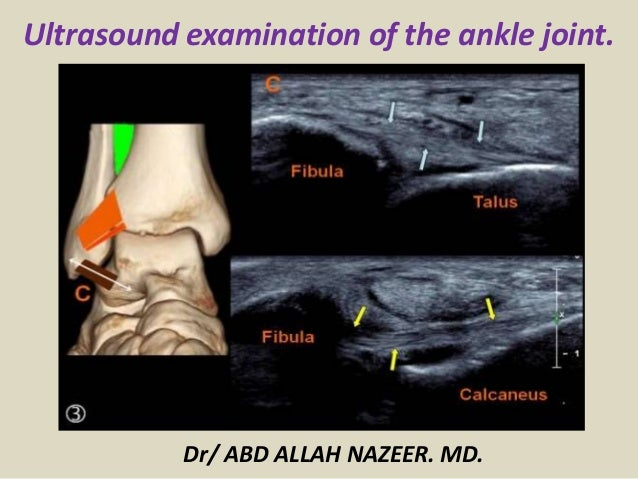 Ultrasound examination of the ankle joint. Dr/ ABD ALLAH NAZEER. MD.