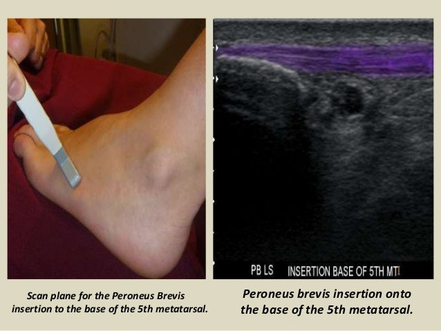 Presentation1.pptx. ultrasound examination of the ankle joint. Slide 3