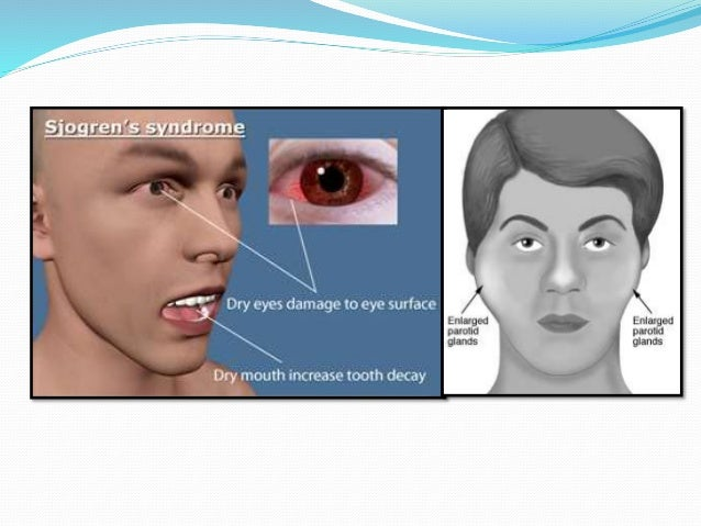  There is no effective treatment, but various options are:- Injection of Botulinum Toxin A. Surgical transection of the...