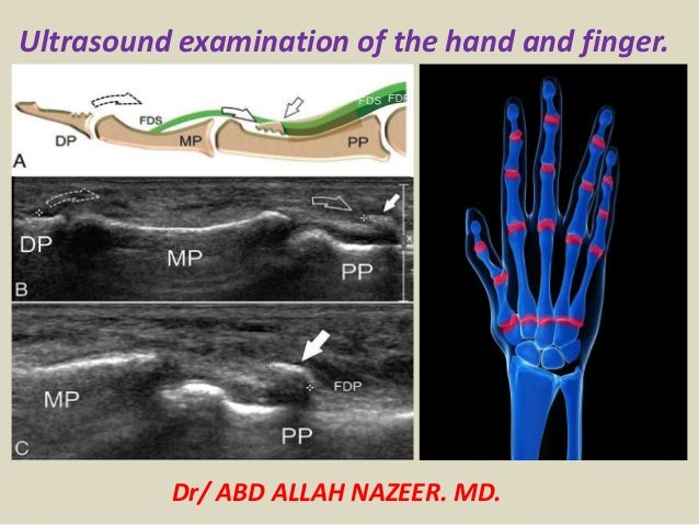Dr/ ABD ALLAH NAZEER. MD. Ultrasound examination of the hand and finger.