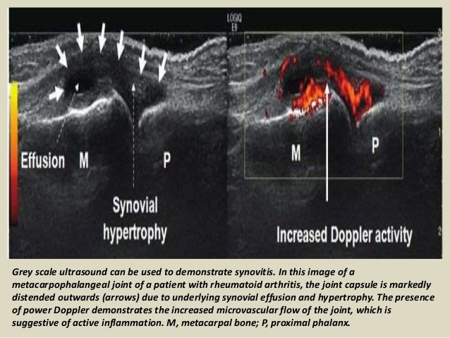 Presentation1 Pptx Ultrasound Of The Hand And Fingers