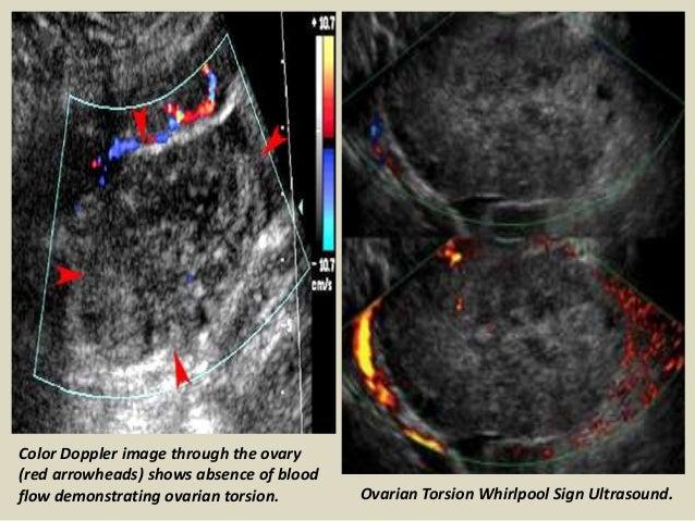 Presentation1 pptx, ultrasound examination of the appendix