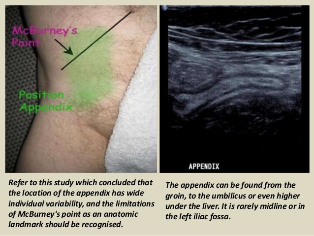 Location Of The Appendix >> Presentation1.pptx, ultrasound examination of the appendix.