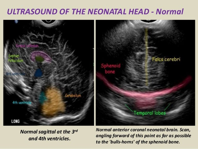 Presentation1.pptx, ultrasound examination of the neonatal head.
