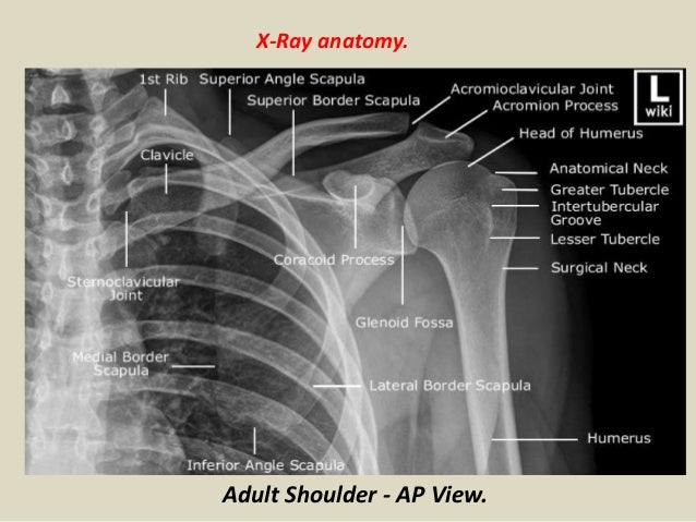 Presentation1pptx Radiological Anatomy Of The Shoulder Joint