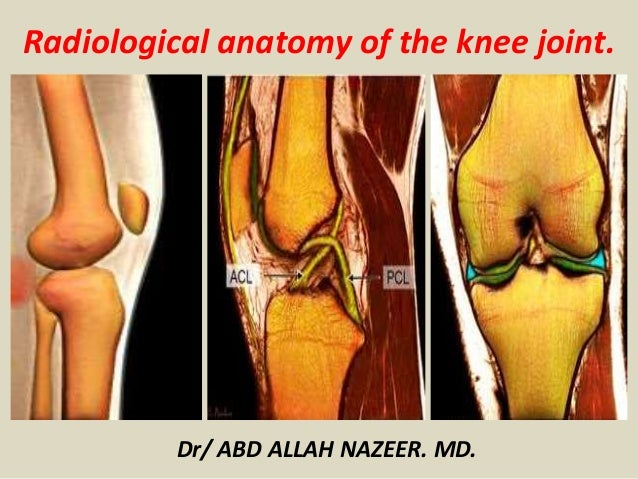 Presentation1pptx radiological anatomy of the knee joint radiological anatomy of the knee joint dr abd allah nazeer md ccuart Gallery