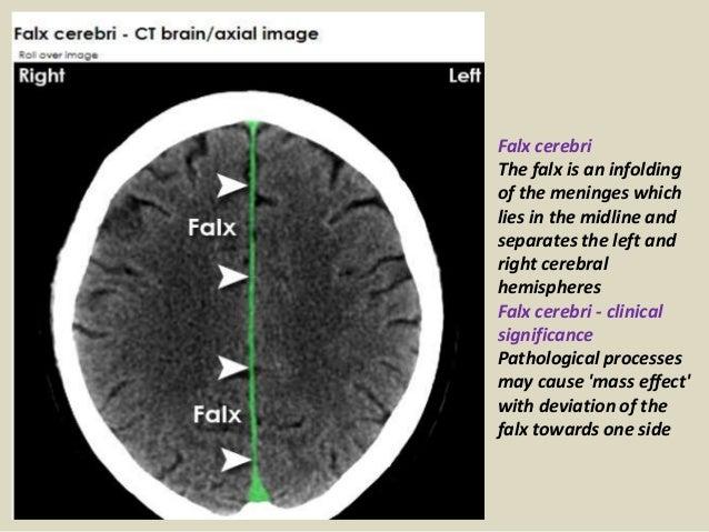 Presentation1pptx Radiological Anatomy Of The Brain