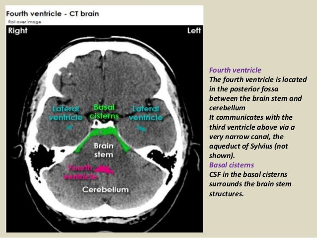 Presentation1 Pptx Radiological Anatomy Of The Brain