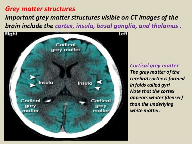 Presentation1.pptx, radiological anatomy of the brain.